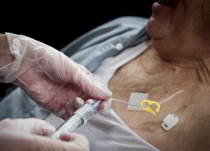 Oncologische zorg (kanker) o.a. chemo afkoppelen, een poortkatheter spoelen, sondevoeding ...